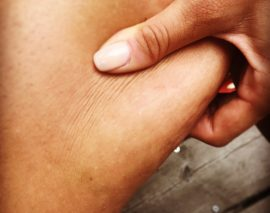 9 astuces chocs anti-cellulite